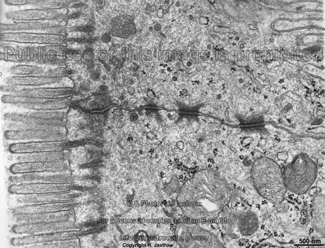 adhesive belt - belt desmosome Dr.Jastrow's electron microscopic atlas: https://www.uni-mainz.de/FB/Medizin/Anatomie/workshop/EM...