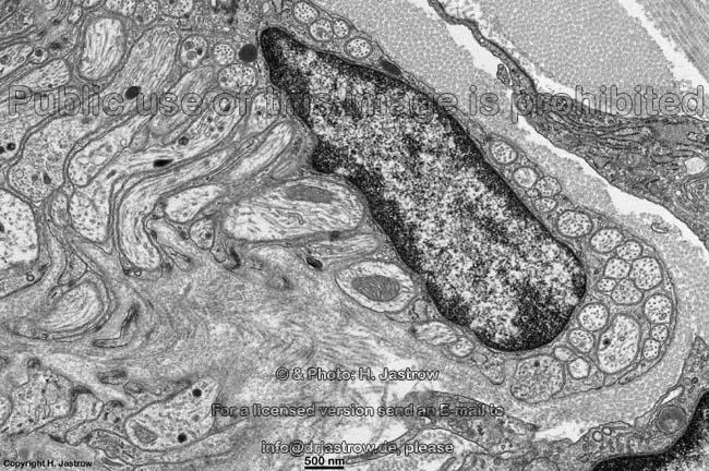 non-myelinated nerve