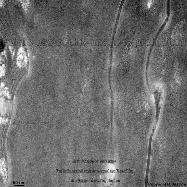 Haut Dr.Jastrows EM-Atlas