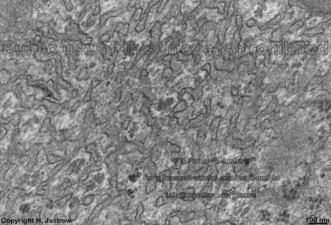 Ser Smooth Endoplasmic Reticulum Dr Jastrow U0026 39 S Em