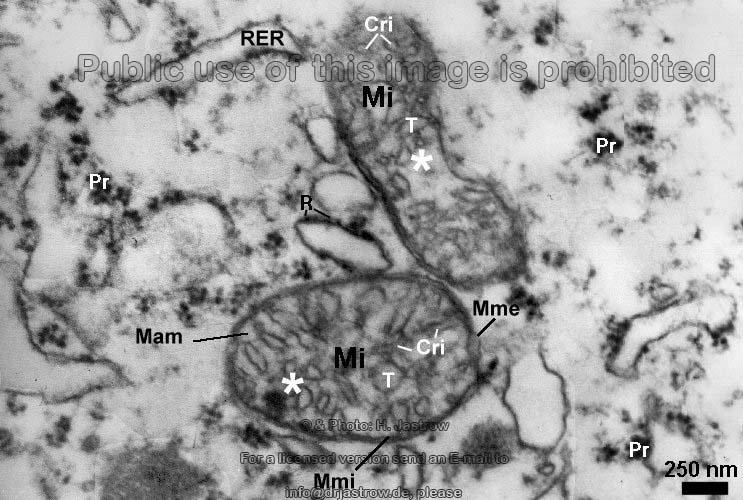 Mitochondrium vom Zwischentyp - Dr. Jastrows EM Atlas