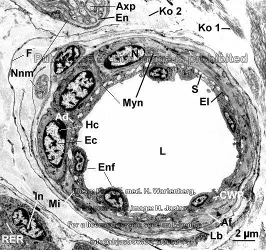 Arteriole, Querschnitt - Dr. Jastrows EM Atlas