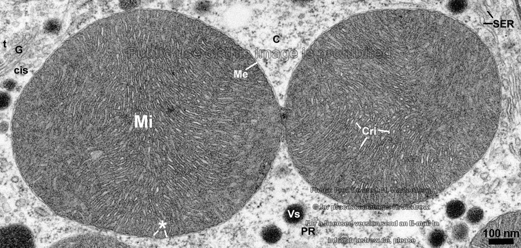 Mitochondrion Crista Type Heart Dr  Jastrow U0026 39 S Electron