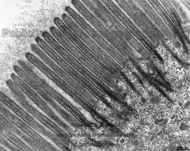 Zellskelett, Filamente Dr.Jastrows EM-Atlas | 650 x 515 jpeg 108kB