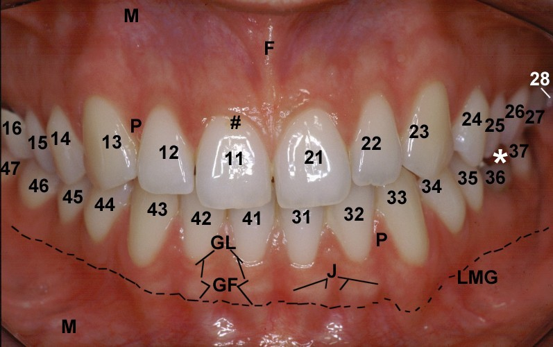 Labelled Image Of Human Teeth Clinical Anatomy