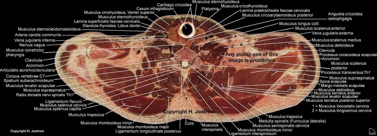 Visible Human male sectio 1279 notata