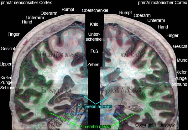 arterielle Versorgung des Gehirns